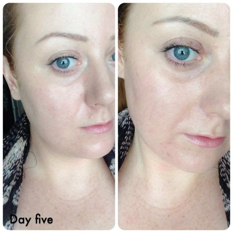Day five - much clearer skin with a healthy glow