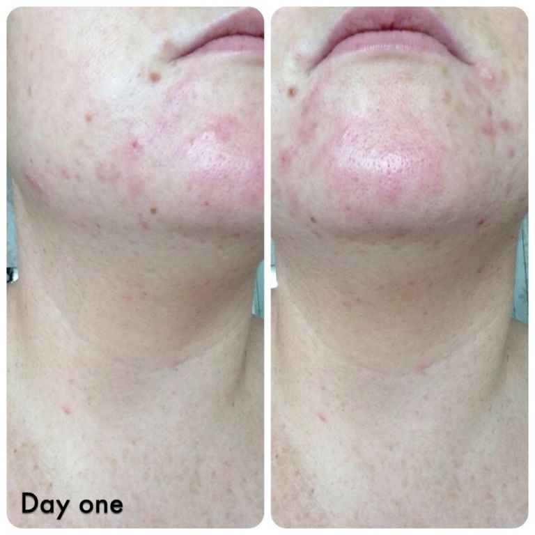Here's day one of starting treatment with very unhappy skin!