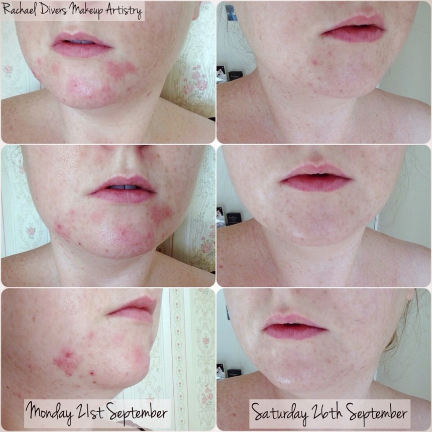 Acne erythromycin facial