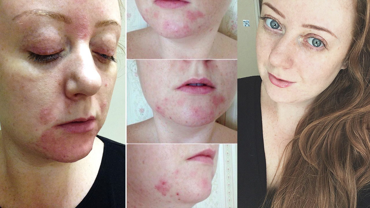 How I'm keeping my acne under control with Thuja: Before and